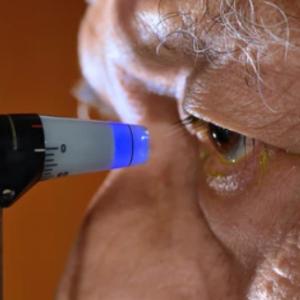 Tonometría ocular