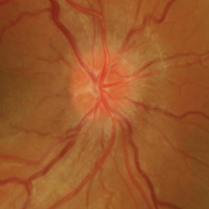 neuritis optica